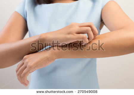 stock-photo-girl-scratch-the-itch-with-hand-arm-itching-concept-with-healthcare-and-medicine-270549008