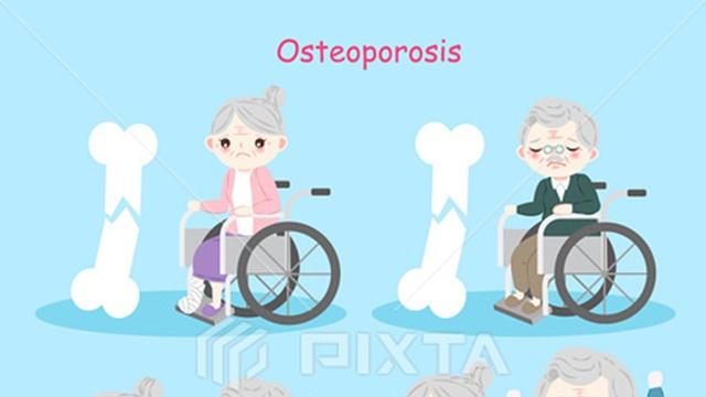 骨粗しょう症は30代からはじまっている!その原因と3つの予防法を紹介!